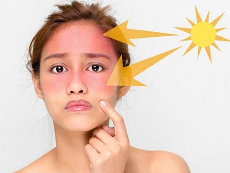 5 sai lầm trầm trọng cần tránh trong lúc điều trị nám da